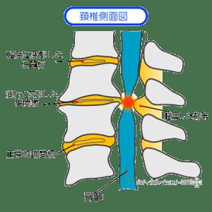 脊柱管狭窄症の解説イラスト