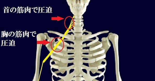 胸郭出口症候群の解説の画像