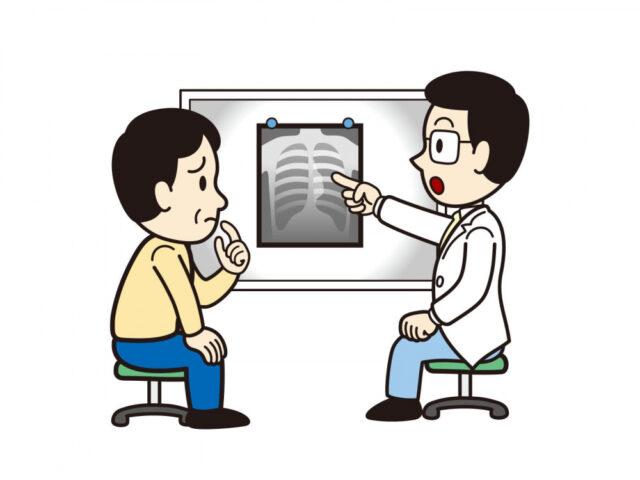 股関節のレントゲン写真のイラスト