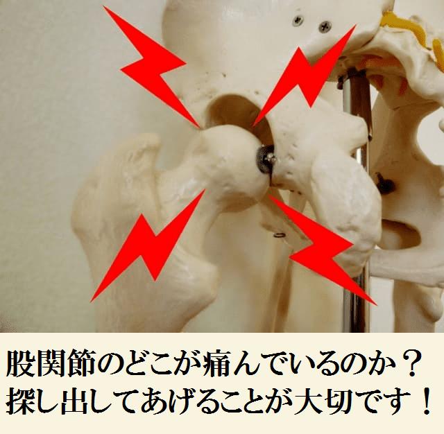 股関節のどこが痛んでいるのか?探し出してあげることが大切です!
